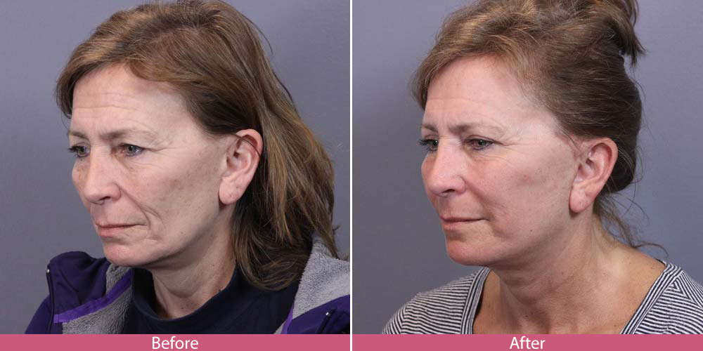 Bellevue facelift - plastic surgeon before-after
