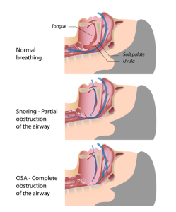 illustration of how snoring works