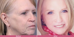 Peggy Before and After facelift