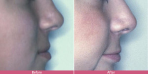 nose surgery before after