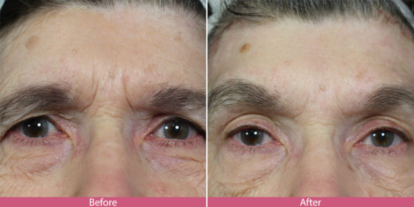 before-after-browlift