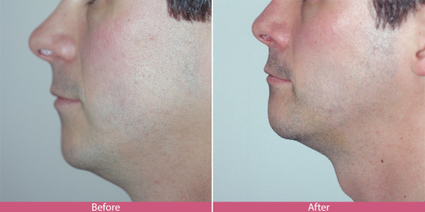 before after nose surgery rhinoplasty bellevue