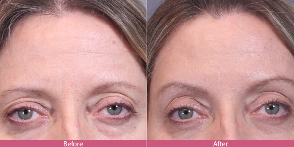 before after brow lift