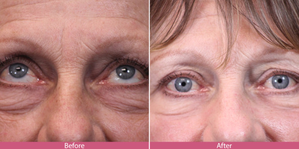 blepharoplasty - eye tuck before after