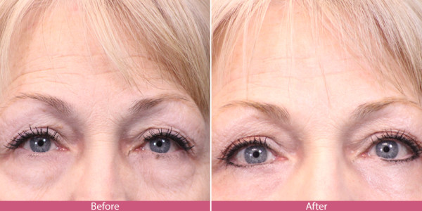 blepharoplasty - eye tuck before after