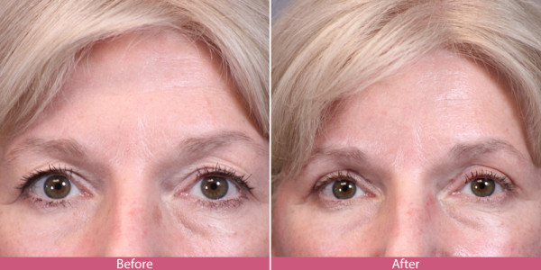 blepharoplasty - eye tuck before aftee
