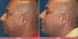 Lipo injection before and after man